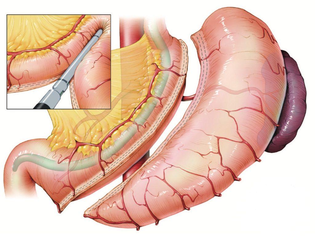 operatie gastric sleeve